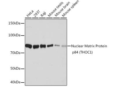 Nuclear Matrix Protein p84 (THOC1) Rabbit mAb