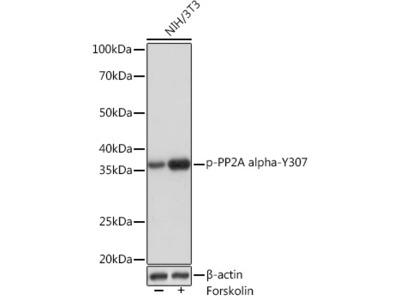 Phospho-PP2A Catalytic α-Y307 Rabbit mAb