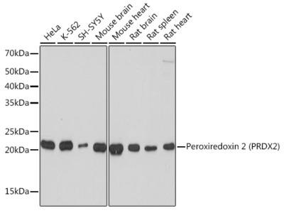 Peroxiredoxin 2 (PRDX2) Rabbit mAb