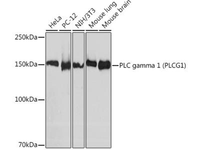 PLC gamma 1 (PLCG1) Rabbit mAb