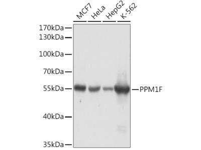 PPM1F Rabbit pAb