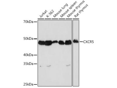 CXCR5 Rabbit mAb