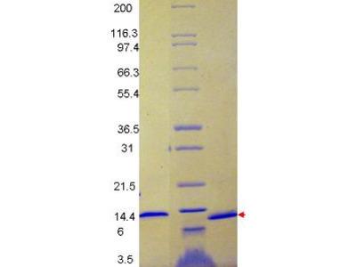 MCP-1 Human Recombinant Protein