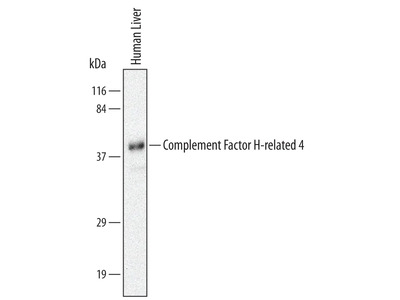 Complement Factor H-related 4 /CFHR4 Antibody