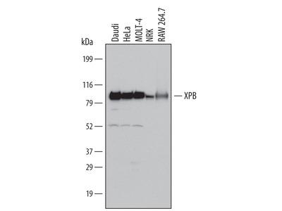 XPB Antibody