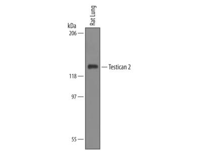 Testican 2 /SPOCK2 Antibody