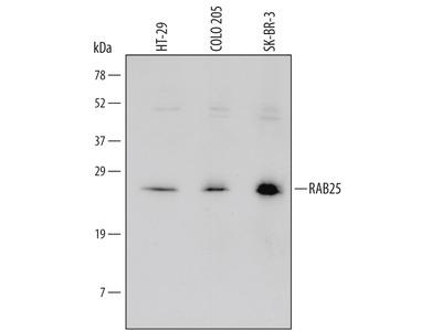 Rab25 Antibody