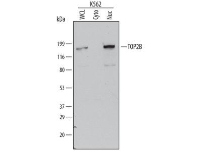 TOP2B Antibody