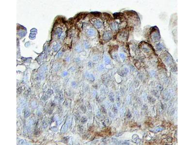 PTGER2 Antibody