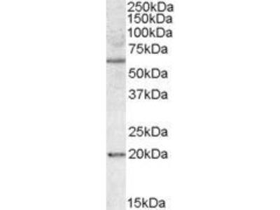 Anti-SODD antibody, Internal