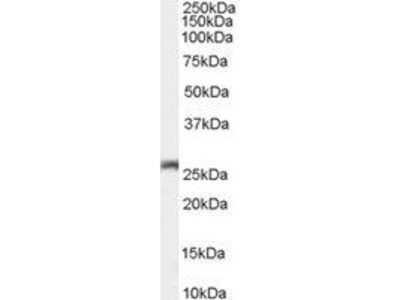 Anti-Connexin 26 antibody, C-term