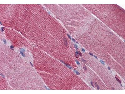 Anti-PACE4 antibody, Internal