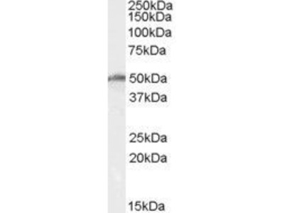 Anti-DBP5 / DDX19 antibody, Internal