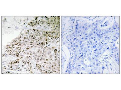 Anti-TAF13 antibody