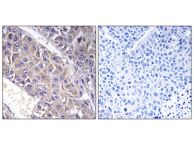 Anti-B4GALT3 antibody