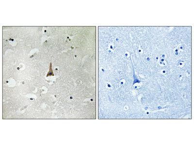 Anti-LRP10 antibody
