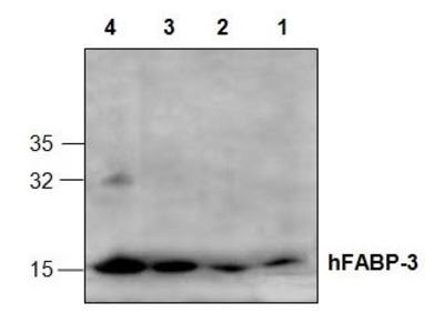 Anti-FABP3 antibody