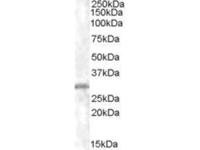 Anti-CHMP5 antibody, C-term