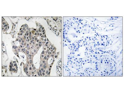 Anti-RAB3GAP2 antibody