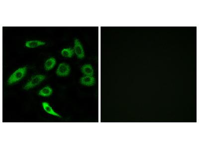 Anti-TAS2R3 antibody