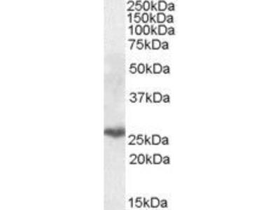 Anti-PSMB10 antibody, Internal