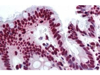 Anti-THRAP3 antibody