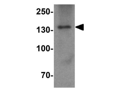Anti-PALB2 antibody