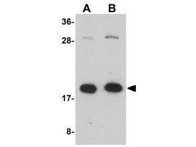 Anti-ZCRB1 antibody