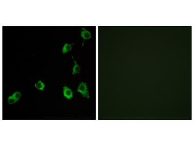 Anti-OR5B12 antibody