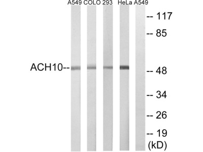 Anti-AChR alpha 10 antibody