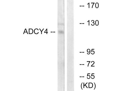 Anti-ADCY4 antibody