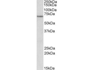 Anti-ETFDH antibody, Internal