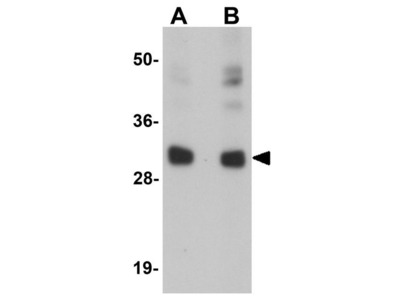 Anti-CCDC106 antibody