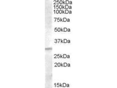 Anti-IGFBP4 antibody, C-term