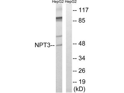 Anti-SLC17A2 antibody