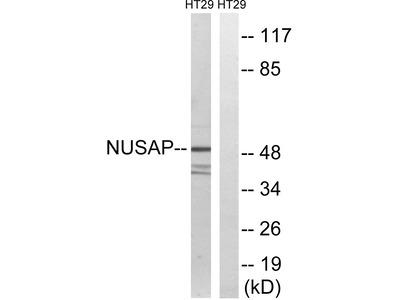 Anti-NUSAP1 antibody