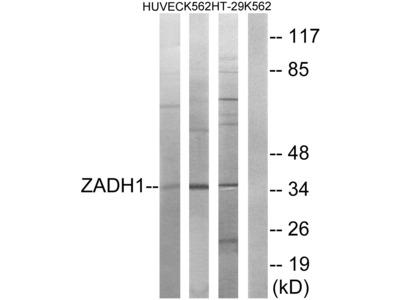 Anti-ZADH1 antibody