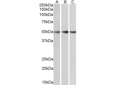 Anti-PPP2R5E antibody, C-term