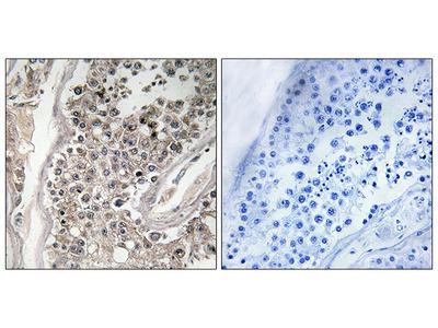 Anti-RAB3GAP1 antibody