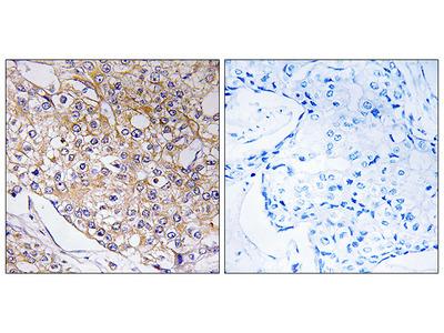Anti-TRAPPC1 antibody
