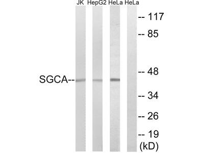 Anti-alpha Sarcoglycan antibody