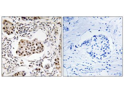 Anti-PPP1R11 antibody