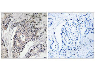 Anti-THBS4 antibody