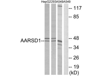 Anti-AARSD1 antibody