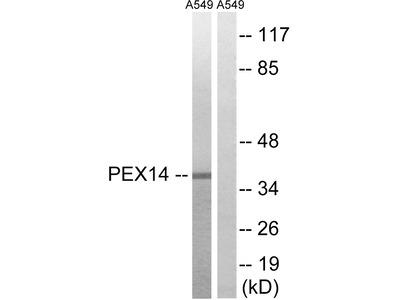 Anti-PEX14 antibody