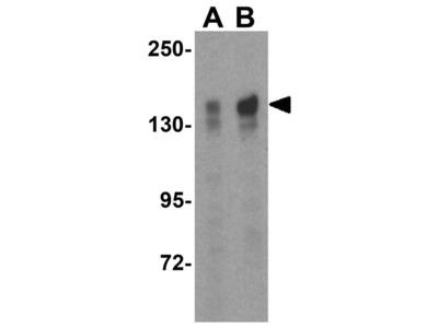 Anti-TBC1D1 antibody
