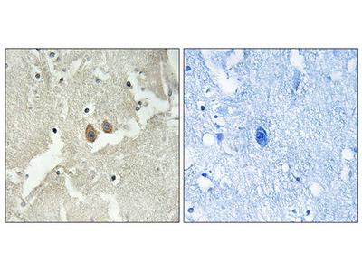 Anti-NSG2 antibody