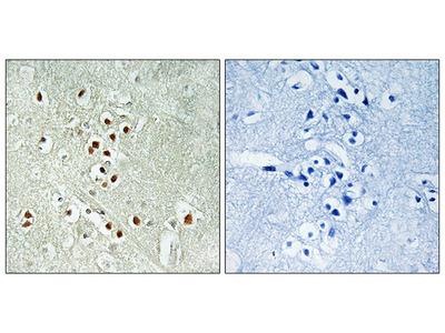 Anti-GADD45GIP1 antibody