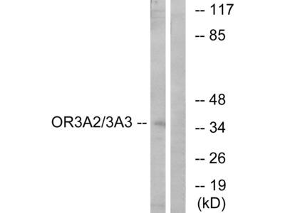 Anti-OR3A2 + OR3A3 antibody