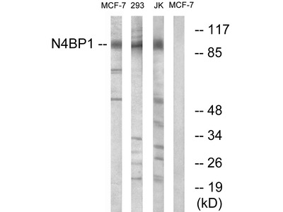 Anti-N4BP1 antibody